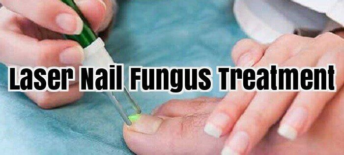 Laser Nail Fungus Treatment #NailFungus