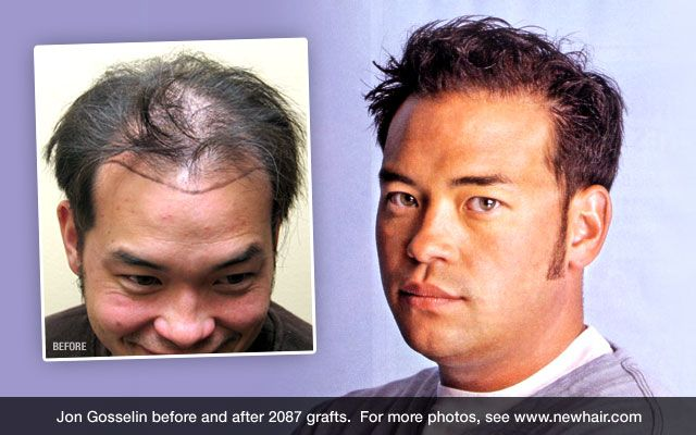 How Much Does Hair Transplant Cost? | Hair transplant ...
