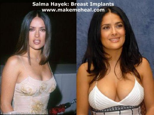 Celebrity Breast Implants: Did They or Did They Not? | Ms. Taken Blog  why hers  look so natural?