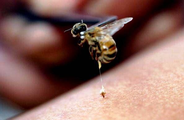 Arı zehiri nedir? Arı zehiri, işçi arıların zehir torbalarında ürettikleri bir maddedir. Arıların arka kısımlarında bulunan iğneleri, arıların zehrini zerketmesini sağlar. Arıların iğnesini batırması ile birlikte, zehir keseden yavaş yavaş vücuda zerkedilir. Bu duruma arı sokması denir. Arı soktuğu andan itibaren