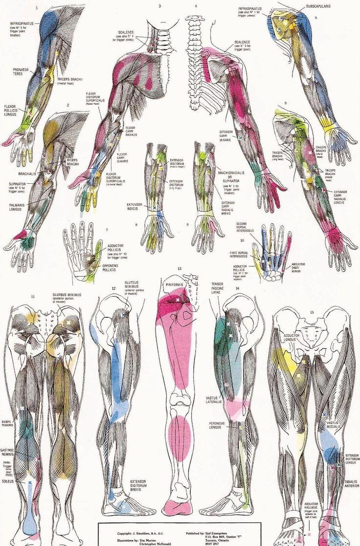 Trigger Point Pain Referral Patterns Referred Pain