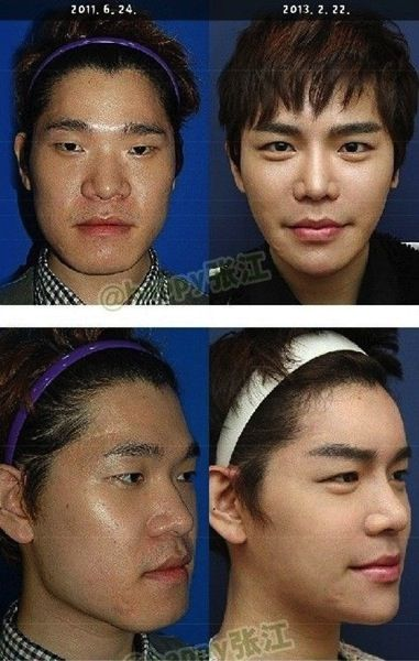 korean-boy-before-and-after-surgery-4.jpg