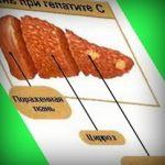 Рецепты Здоровья - Гепатит С