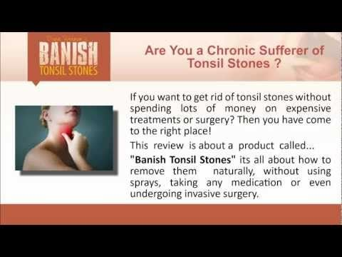 A review on a product called Banish Tonsil Stones. This will cover how to get rid of tonsil stones naturally and what tonsil stones treatment entails. This product has helped thousands of people over their tonsil stones problem. removing tonsil stones has always involved long painful surgery, now their is a na...
