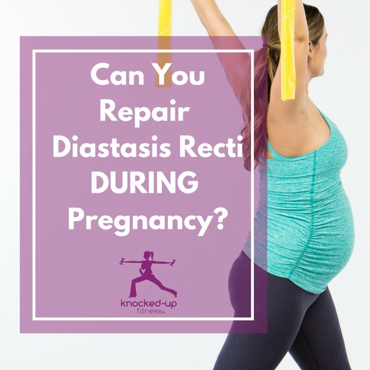 Can you repair diastasis recti during pregnancy? Great question! I share more in my video with lots of great tips and things you can start doing right now, even pregnant, to help possibly decrease slightly during pregnancy but more important help with healing postpartum.