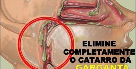 Sabe aquelas bolinhas esbranquiçadas que aparecem nas amígdalas?Elas são chamadas de tonsiólitos, cáseos amigdalianos ou pedras na amígdala e se desenvolvem quando bactérias, muco, células mortas ou até mesmo restos de alimentos começam a se acumular na região.