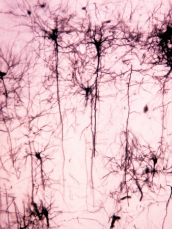 Neurons of the Cerebral Cortex Showing the Dendrites, Cell Bodies, and Axons - Cunningham