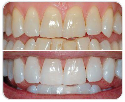 Cómo blanqueé mis dientes con Ionic White…