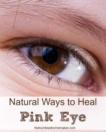 You don't have to spend lots of money on expensive doctor's visits to get a prescription for antibiotic drops. Heal pink eye naturally!