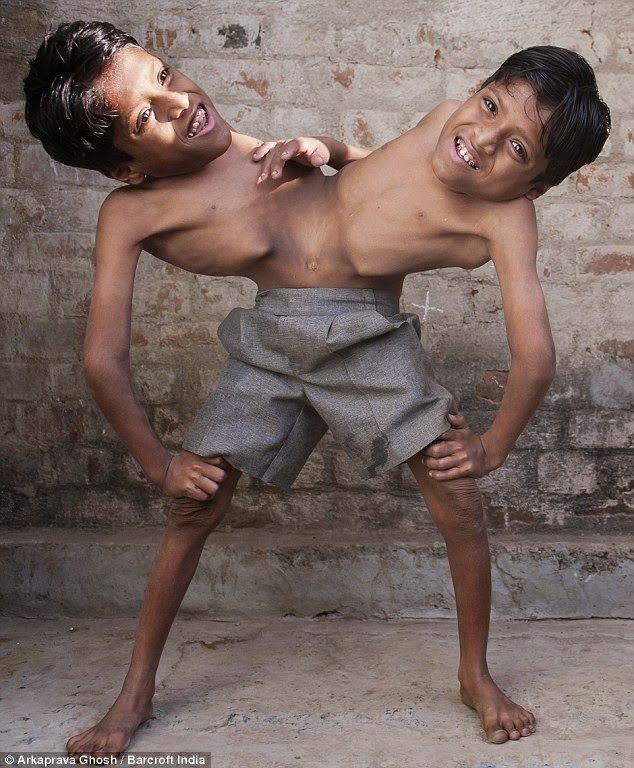 Gêmeos siameses de 12 anos, adorados como encarnações divinas, dizem que não querem ser separados