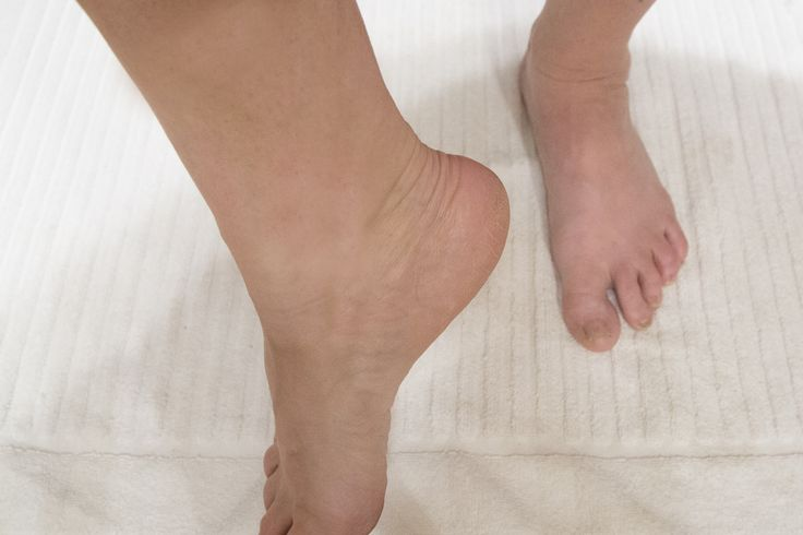 How To Soften Rough Heels With A Home Remedy | LIVESTRONG.COM