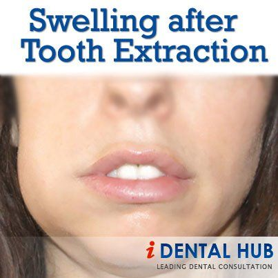 Swelling after tooth extraction is normal body reaction. The degree of swelling and duration for which swelling is there varies from person to person. Swelling is more in case of wisdom tooth extraction or surgical extractions as compared to simple tooth extraction. To reduce the swelling, cold application is done intermittently for fist 36 hours after tooth extraction.