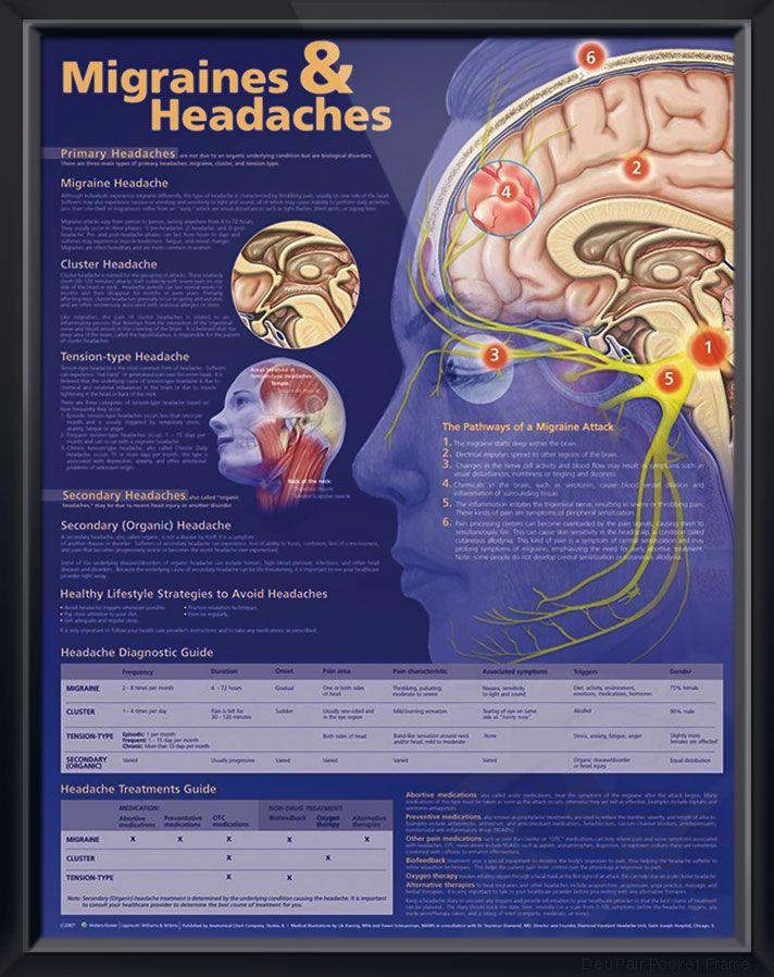 18 best Headaches images on Pinterest | Migraine headache, Chronic ...