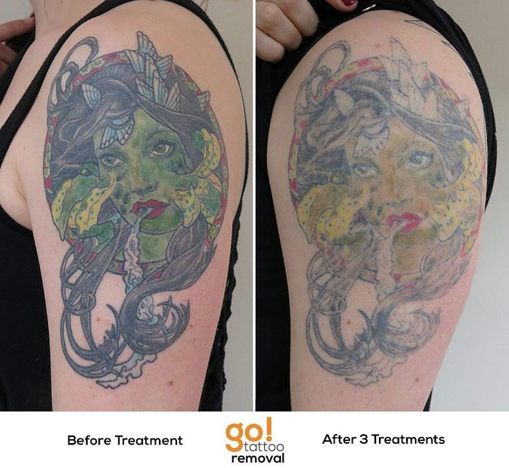 Multi-color modern tattoos are often some of the most complicated to remove.  While this client is seeking a cover-up we're trying to clear as much of the old tattoo as possible so there won't be any compromise for the tattoo artist who will work on this.  Likely another 2-3 treatments will be needed to achieve that level of fading.   Every tattoo will have different results we post a wide variety of images to help set realistic expectations.  #tattooremoval #lasertattooremoval #allentown…