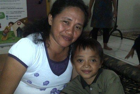 Bola Mata Timothy Sering Lepas, Akibat Kanker Mata | Beritasejagat.com