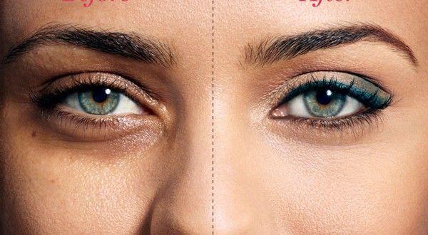 How to treat Sunken Eyes   Sunken eyes, Dark circles under ...