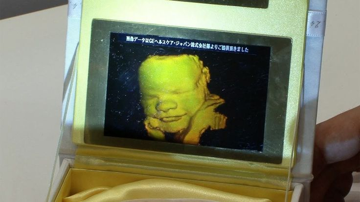 3D ultrasound hologram printing service of unborn fetuses using Pioneer's compact holographic printer