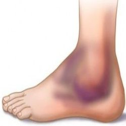 9 Excellent Herbal Remedies For Edema