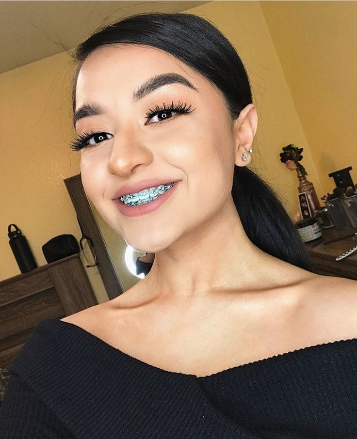 Pin by reshaun johnson on cute braces in 2020 cute