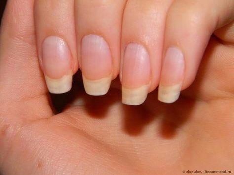 Чтобы ногти всегда выглядели ухоженными и были белыми, длинными и крепкими советую этот рецепт! Сама им пользуюсь, результат поражает! | Хитрости Жизни