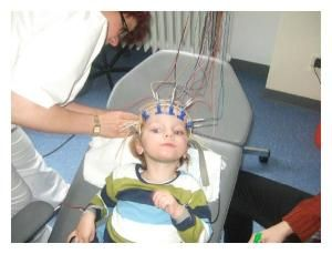 First successful treatment of pediatric cerebral palsy with autologous cord blood: Awoken from a persistent vegetative state