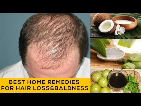 Best Hair loss treatment | How to stop hair loss and baldness | Best Home Remedies -  How To Stop Hair Loss And Regrow It The Natural Way! CLICK HERE! #hair #hairloss #hairlosswomen #hairtreatment There are several home remedies and hair fall tips. Here we list some of the most effective home remedies for hair fall that also prevents hair loss and prevent baldness.  - #HairLoss