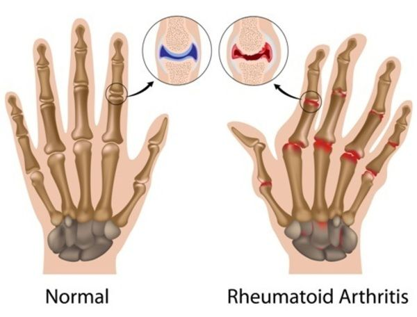 Chondrocyte Apoptosis in Rheumatoid Arthritis: Is Preventive Therapy Possible?