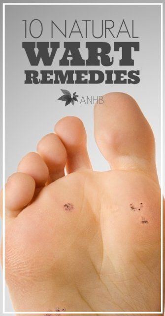 Check out these 10 simple and all natural wart remedies. Good to know.