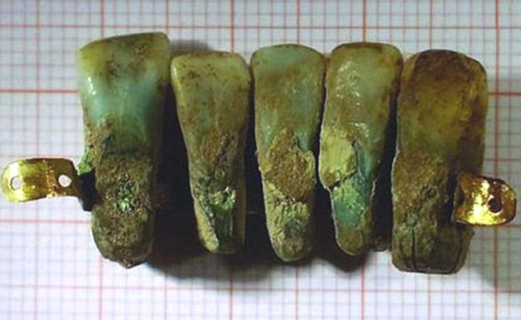 #Archaeologists Find Medieval #Dentures Made from the Teeth of Dead People