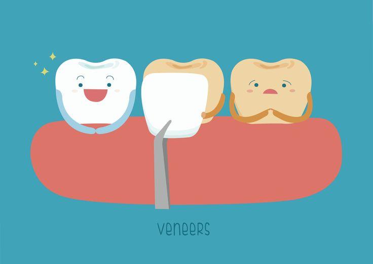 does geha dental insurance cover veneers