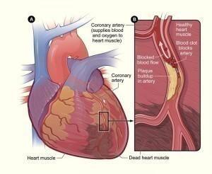 Heart Blockage Symptoms - http://www.medicalsymptomsguide.com/heart-blockage-symptoms.html…