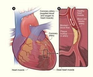 Heart Blockage Symptoms - http://www.medicalsymptomsguide.com/heart-blockage-symptoms.html …