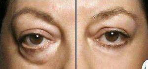 nstantly Ageless™ is sweeping the country! Women across our great nation are discovering this fantastic new beauty tool and demand is high!  Instantly Ageless™ is a liquid facelift! No need for costly botox injections or painful surgery! Works in minutes...seriously!  Retail and wholesale opportunities... go to my Facebook page www.facebook.com/agelessontario and watch the amazing results on video! Truly instant. High demand for product... new to Canada