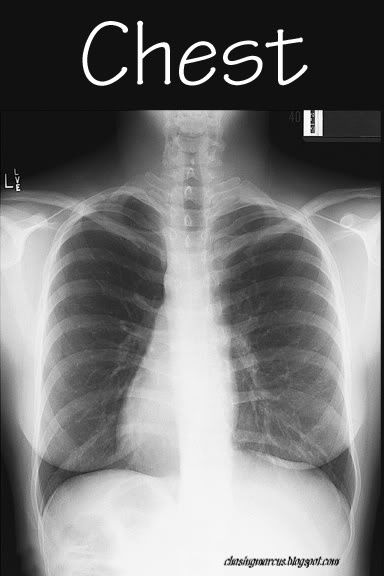 4x6 x-ray photos. Print them, laminate them, and use them for the dramatic play center (hospital theme)