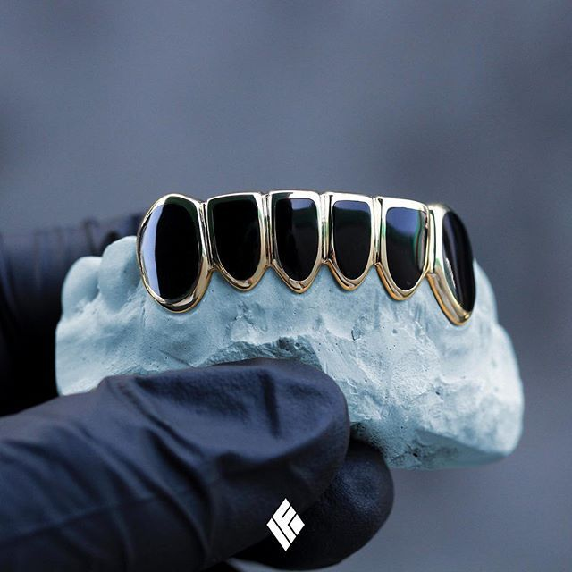 Custom 14K Yellow Gold Bottom 6 Grills With Black Enamel. Specially made for @jedi__  #Grillz #CustomJewelry #IFANDCO