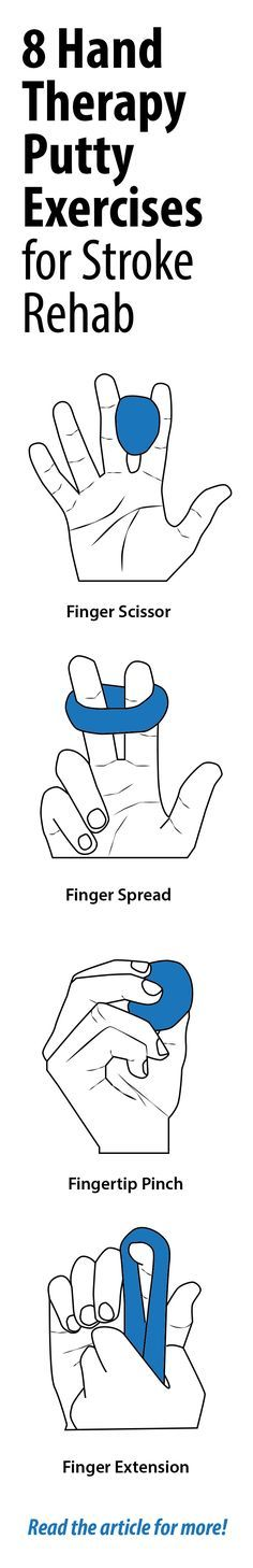 8 therapy putty exercises for stroke rehab! #seniorcare #stroke #alwaysbestcare