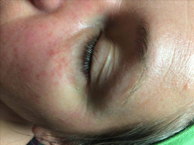 Rosacea caused from congested liver?