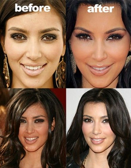 Kim Kardashian Face Before and After Plastic Surgery. I don't know what she did but she sure looks different!