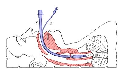 tracheostomy anatomy and physiology | Tracheal intubation - Wikipedia, the free encyclopedia