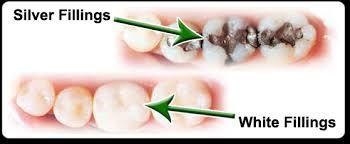 Dr. Nancy Block provide #dental filling services in #Chicago. To know more visit: http://drnancyblock.com/general-dentistry/dental-fillings/