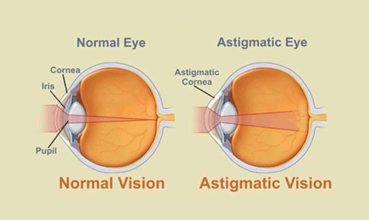 All about astigmatism laser eye surgery cost