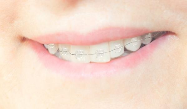 Tienes hasta este 28 DE FEBRERO para descargar el cupón promocional con el 30% en ortodoncia estética. Más información en https://www.facebook.com/SanadentDental/app_174961479209942