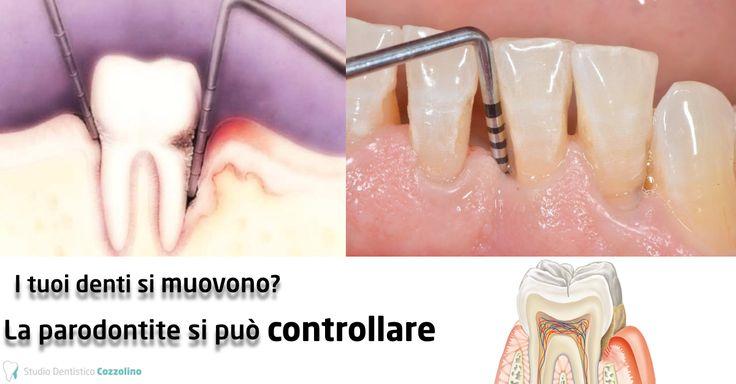 LA PARODONTITE (Piorrea) oggi SI PUÒ CONTROLLARE! www.studiodentist... La Parodontologia è quella branca dell'odontoiatria che si occupa della prevenzione, della diagnosi e della cura delle patologie a carico dei tessuti di sostegno del dente come gengive e osso.