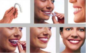 Adult Orthodontics - Braces and Invisalign