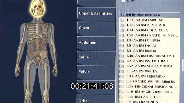 El síndrome de la articulación facetaria es el dolor en la articulación entre dos vértebras de la columna vertebral. Resofus utiliza Ultrasonido Focalizado guiado por Resonancia Magnética como una técnica de ablación térmica no invasiva para aliviar el dolor causado por la osteoartritis con un efecto mínimo de los tejidos circundantes que rodean la espalda. El efecto paliativo de ResoFus se basa en la denervación por destrucción del periostio mediante calentamiento controlado.