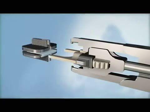 Замена межпозвоночного диска в Израиле на искусственный имплант в шейном отделе позвоночника. Минимально-инвазивная операция замены межпозвонкового диска в шейном отделе позвоночника за рубежом - http://www.medicaltourisrael.com/?p=7323
