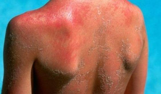 Sunburn Treatment at Home (Natural Remedies)