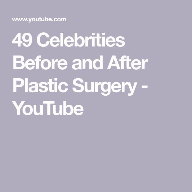 49 Celebrities Before and After Plastic Surgery – YouTube – –