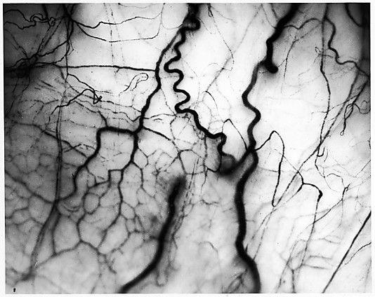 Harold Edgerton (American, 1903–1990) Detail of veins on Human Eyeball