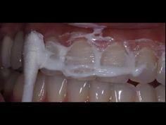 ЖЕНА стоматолога научила меня устранять зубной камень и отбеливать зубы ЗА 4 МИНУТЫ - YouTube